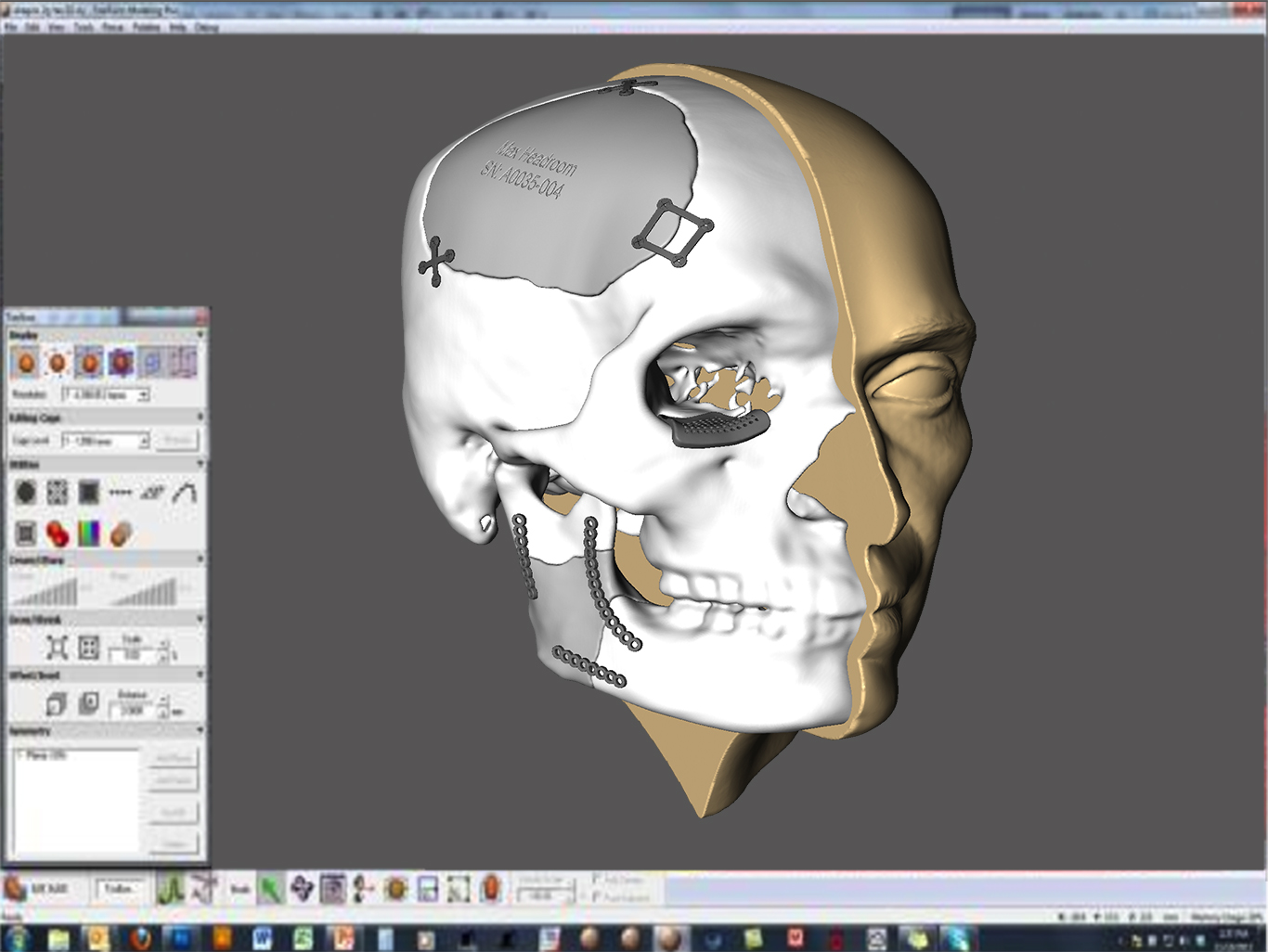 Medical Modeling with Geomagic software